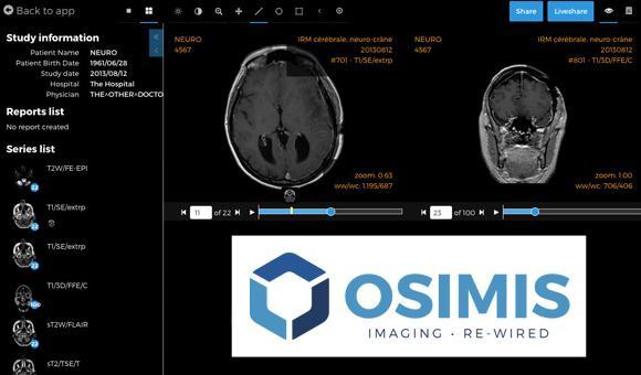 La start-up liégeoise Osimi est active dans les solutions logicielles d'imagerie médicale